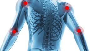 Como tratar naturalmente a artrite reumatoide